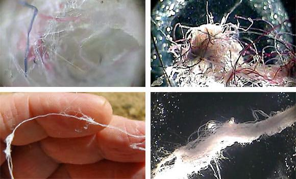 Sentient AI: self-aware , alive chemweb / Morgellons fiber. Image credit: The Truth Denied (YouTube).